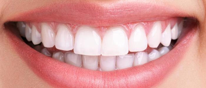 قیمت کامپوزیت دندان در گنبد