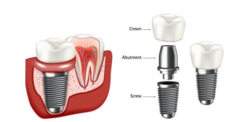 معایب ایمپلنت دندان چیست ؟