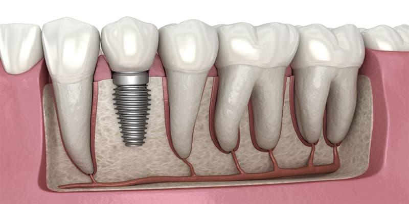 دندان مصنوعی بهتره یا دندان ایمپلنت