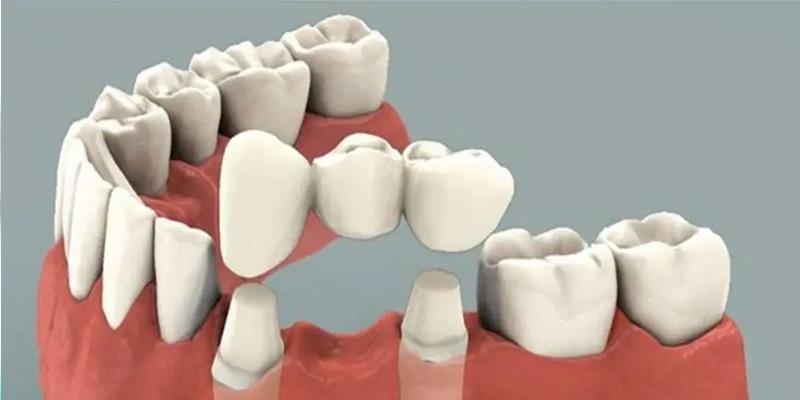 متخصص پروتز دندان در گنبد