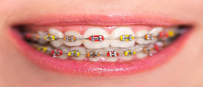 بهترین دندانپزشک گرگان
