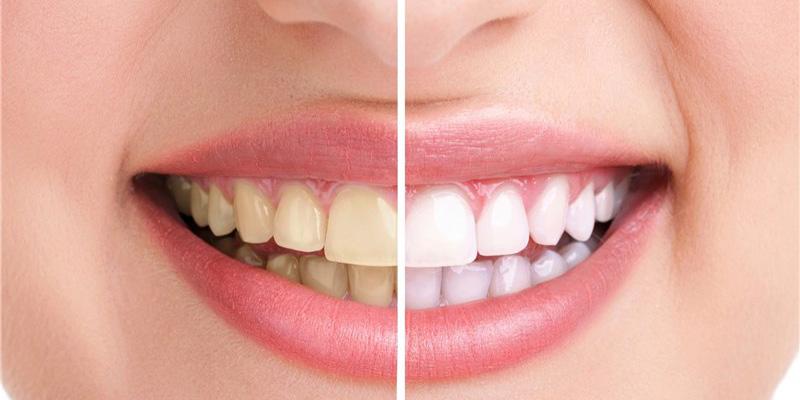 متخصص ترمیم دندان در گرگان
