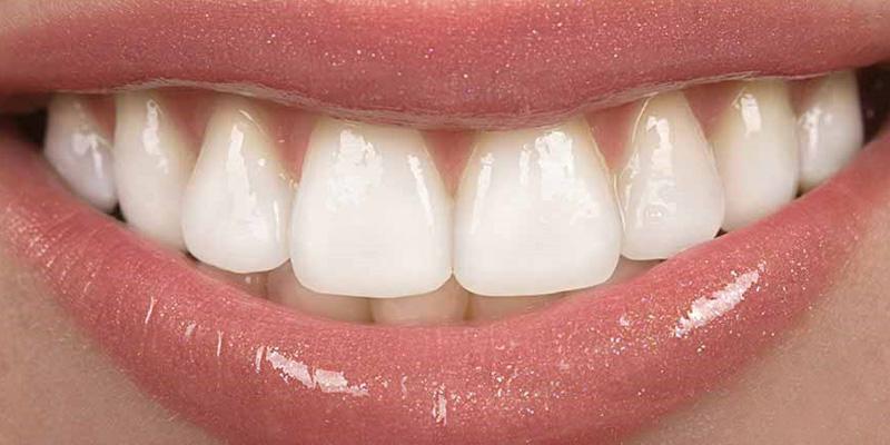 دندانپزشک زیبایی در گرگان