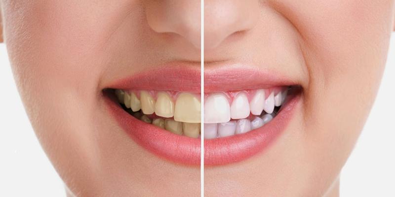 فوق تخصص دندانپزشکی در گرگان