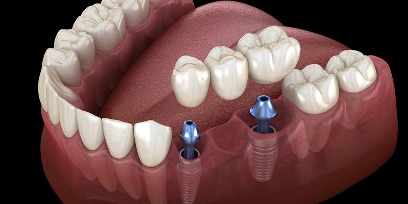 هزینه قیمت دندان مصنوعی با پایه ایمپلنت چقدر می باشد ؟