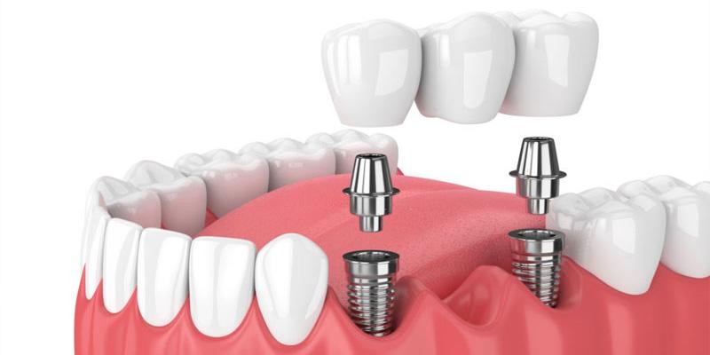 متخصص ایمپلنت دندان در گرگان